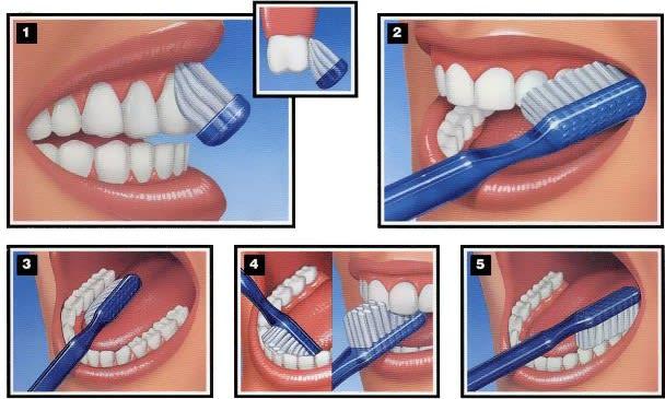 tehnika ščetkanja zob in pranja zob